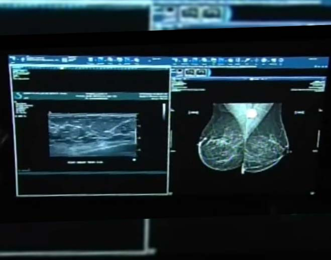 false-positives-in-mammograms-can-be-caused-after-getting-the-covid-vaccine
